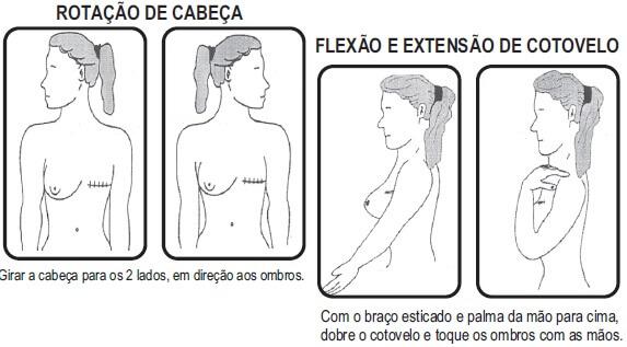 Exercícios de reabilitação em fisioterapia para mulheres mastectomizadas
