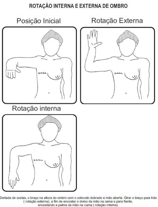 Exercícios funcionais para o ombro em fisioterapia para mulheres mastectomizadas